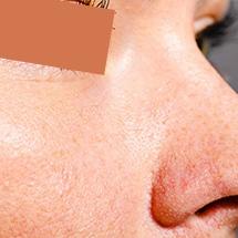 Proširene Pore – Lečenje Proširenih Pora