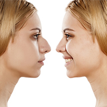 Neoperativna korekcija nosa