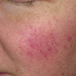 Treatment for Rosacea