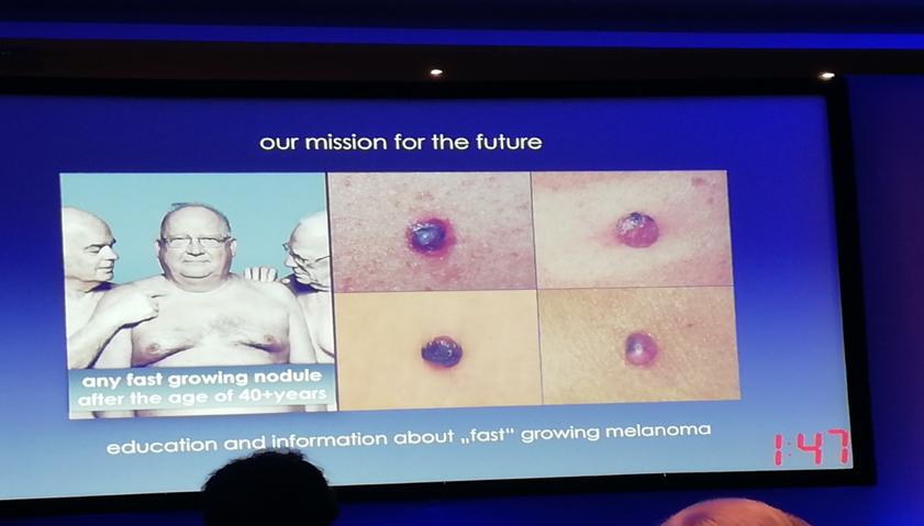Diva Laser Centar na 14. kongresu Dermato Onkologa (EADO)