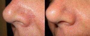 nos pre i posle uklanjanja kapilara