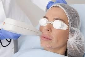 Laserska epilacija lica