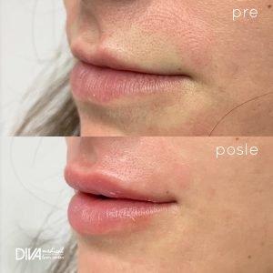 pre i posle hijaluron usne