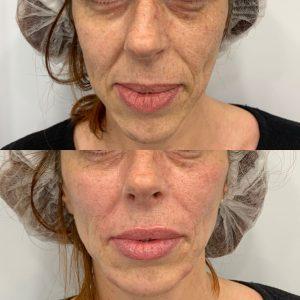 korekcija bora oko usana hijaluronskim filerima